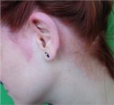 A zuzmó kezelése a gyermek fején - Allergia November